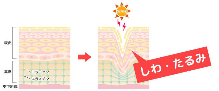 紫外線によるしわ・たるみイメージ画像