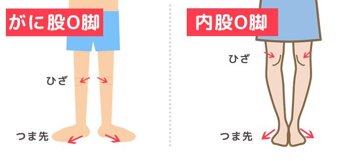 O脚のご説明