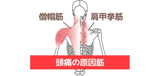 頭痛の原因筋